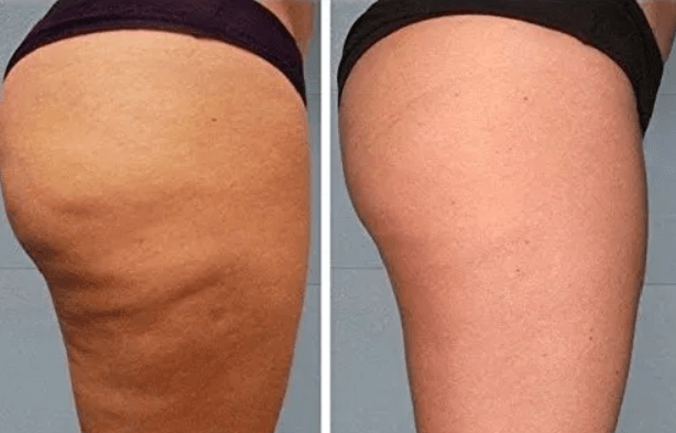 My Cellulite Solution Review See Real Results The Truth Fittylife